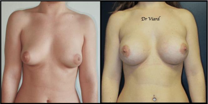 Implants de chirurgie plastique